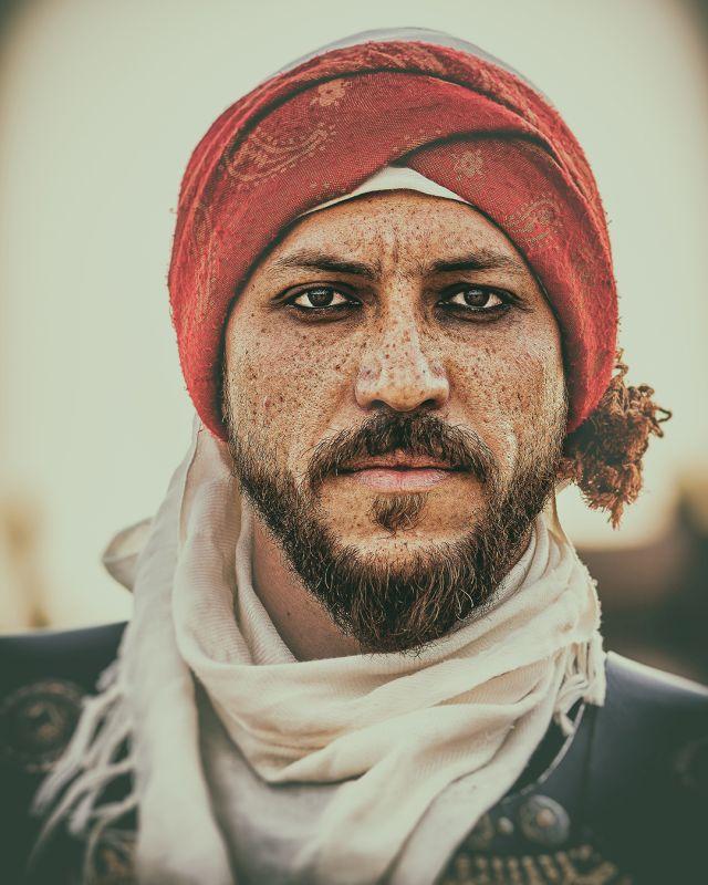 Freckle Face, Almabadi  Abdulrahman , Saudi Arabia
